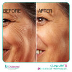 Advanced-Clinicals-Therapeutic-Anti-Wrinkle-Cream2